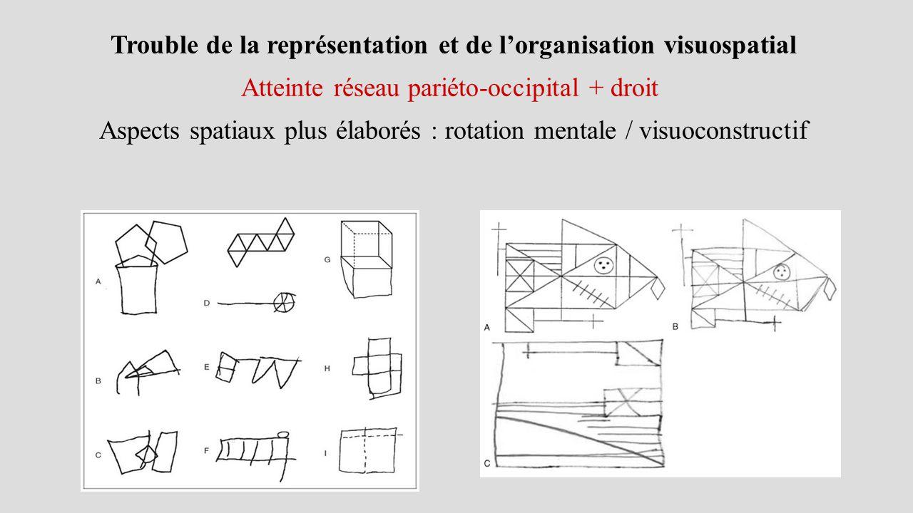 Trouble de la représentation et de l'organisation visuospatial