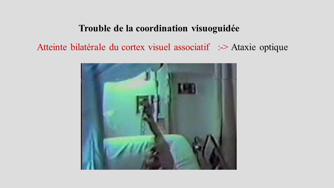 Atteinte bilatérale du cortex visuel associatif :-> Ataxie optique