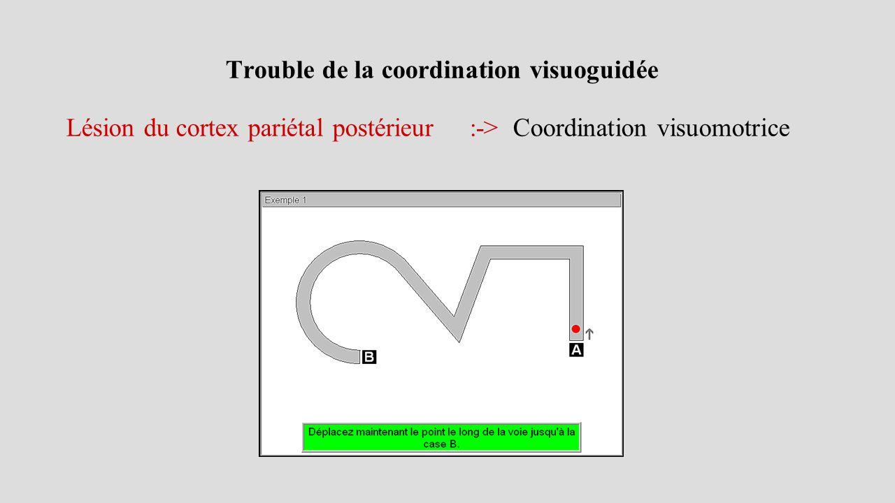 Trouble de la coordination visuoguidée Lésion du cortex pariétal postérieur :-> Coordination visuomotrice
