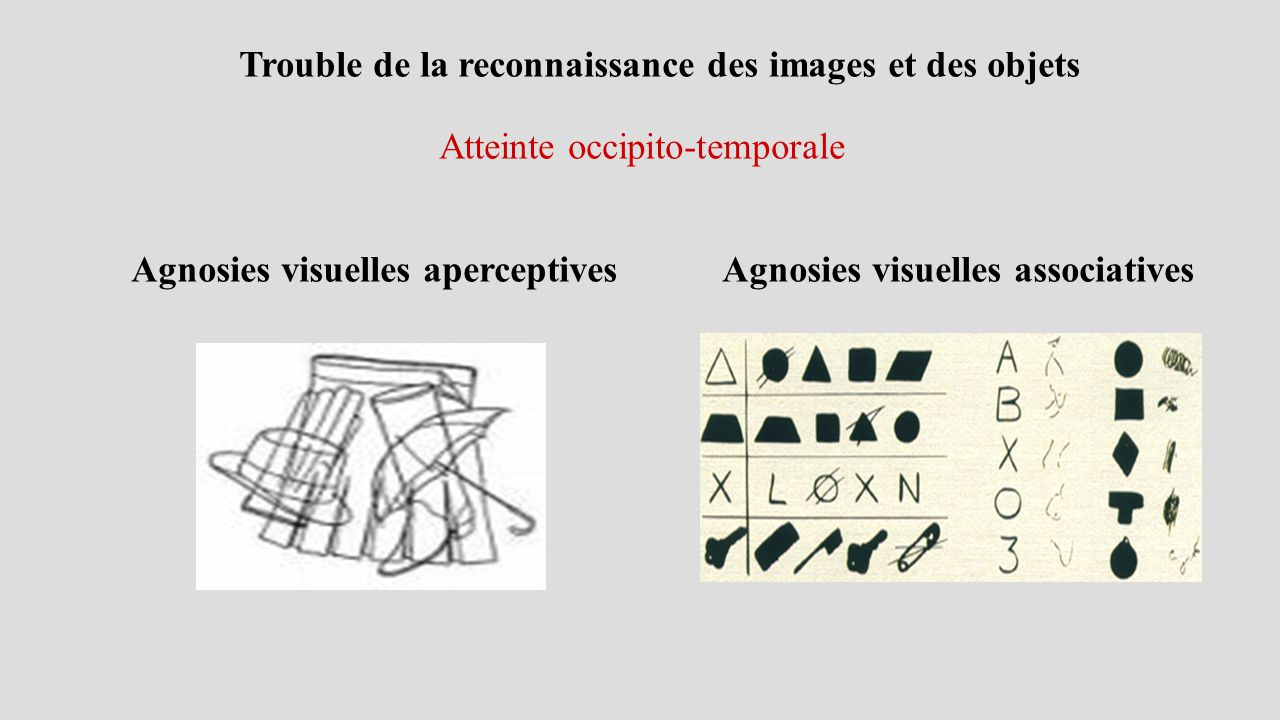 Agnosies visuelles aperceptives Agnosies visuelles associatives