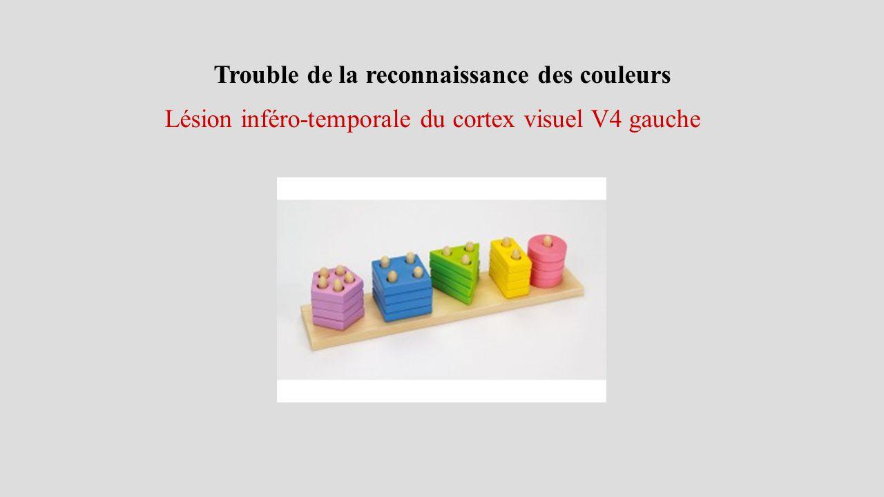 Trouble de la reconnaissance des couleurs Lésion inféro-temporale du cortex visuel V4 gauche
