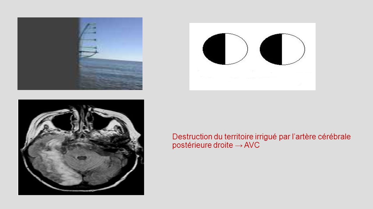 Destruction du territoire irrigué par l'artère cérébrale postérieure droite → AVC