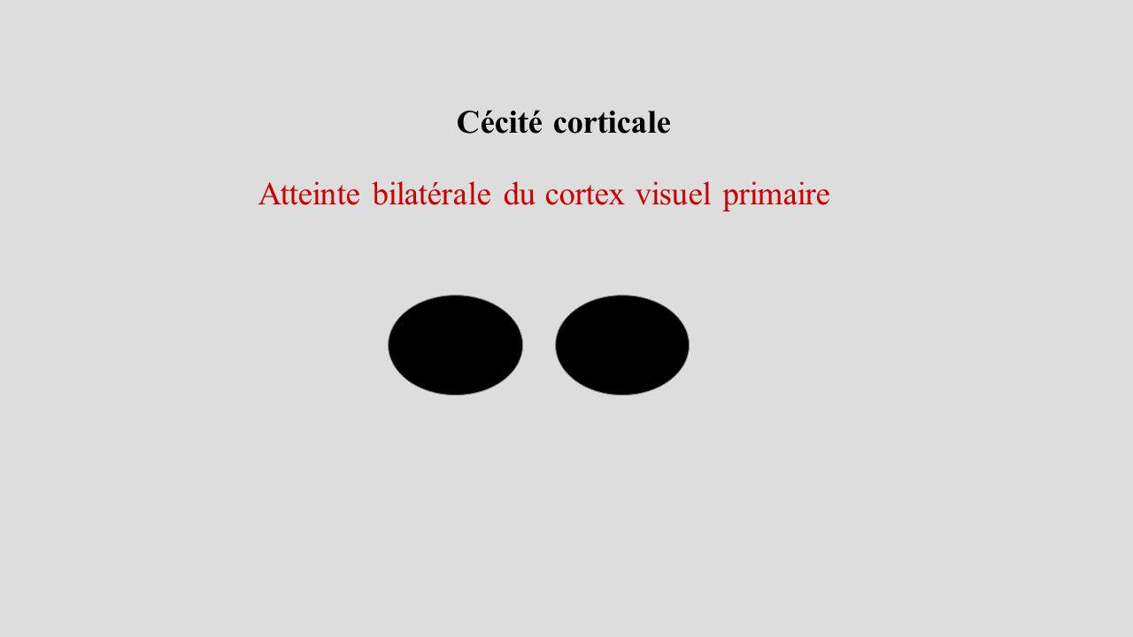 Atteinte bilatérale du cortex visuel primaire