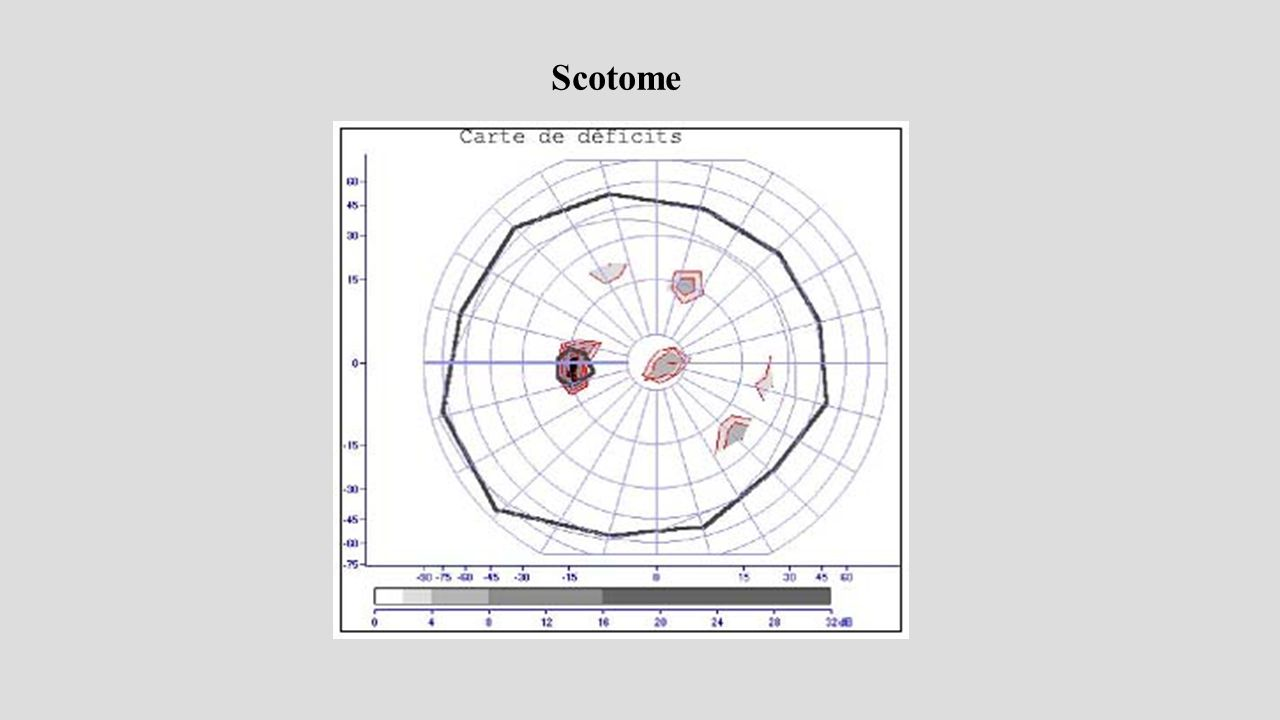 Scotome 42