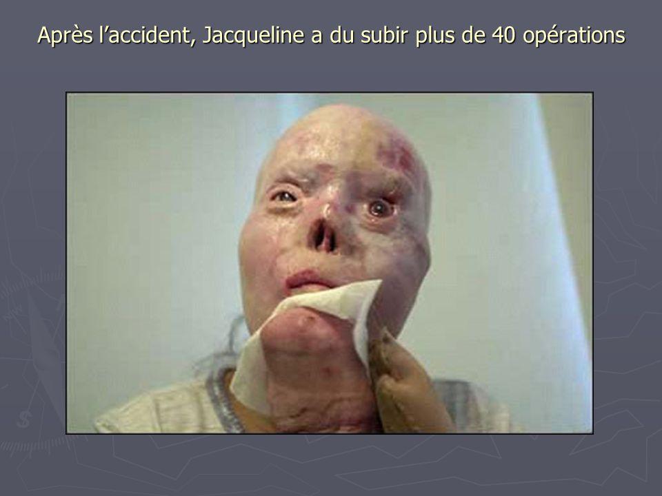 Après l'accident, Jacqueline a du subir plus de 40 opérations