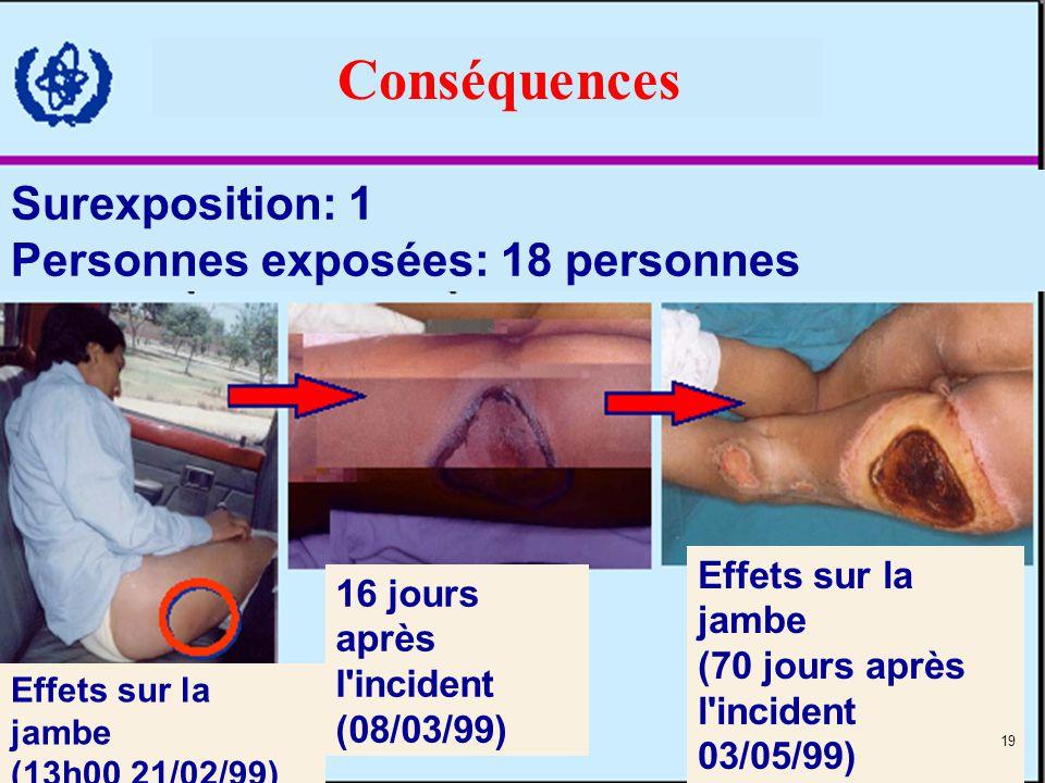 Conséquences Surexposition: 1 Personnes exposées: 18 personnes