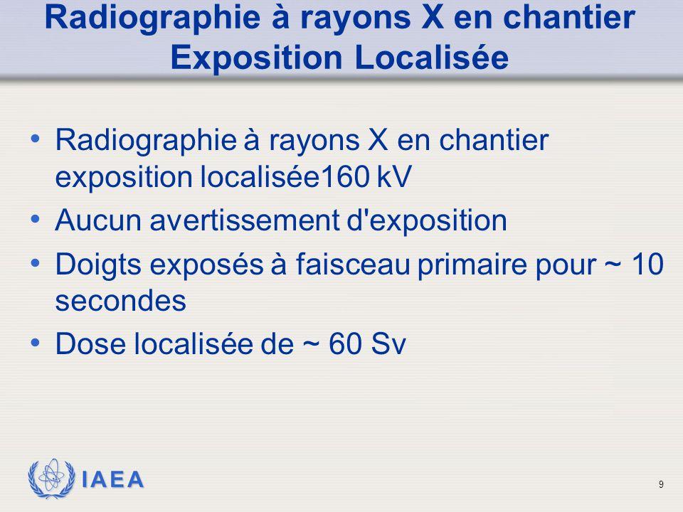 Radiographie à rayons X en chantier Exposition Localisée
