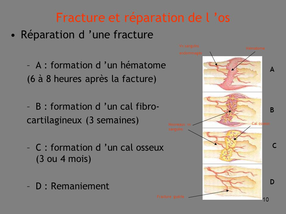 Fracture et réparation de l 'os
