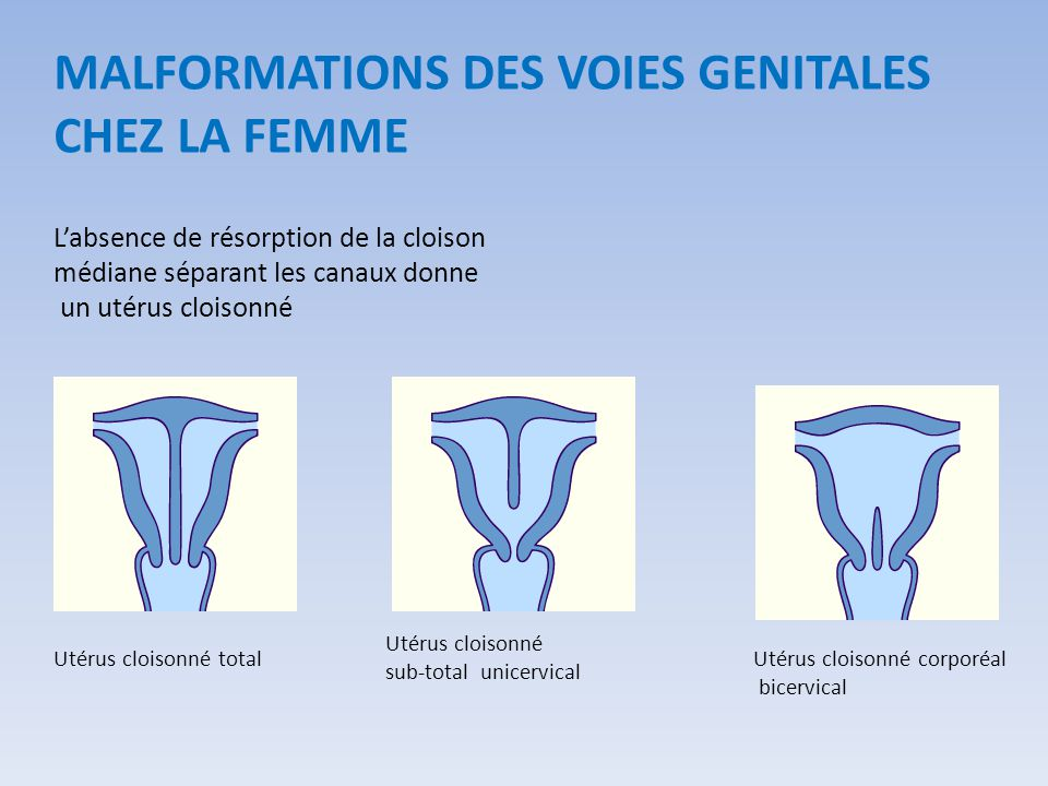 MALFORMATIONS DES VOIES GENITALES CHEZ LA FEMME