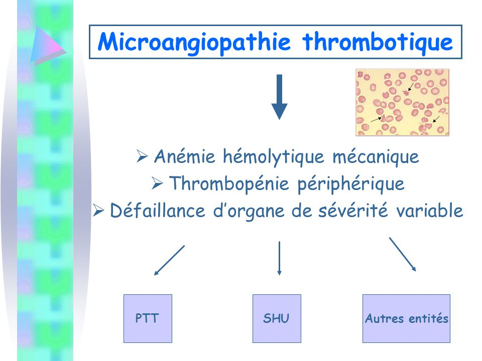 Microangiopathie thrombotique