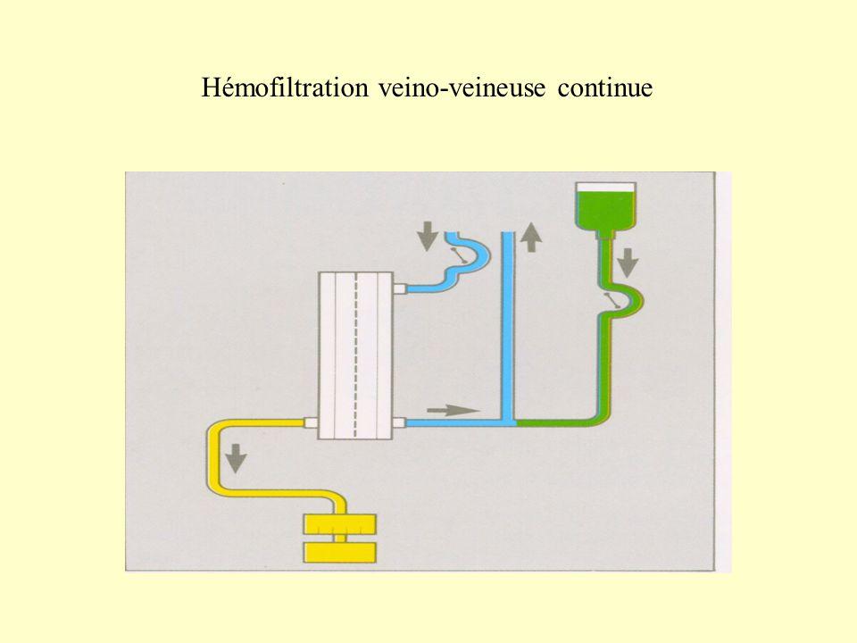 Hémofiltration veino-veineuse continue