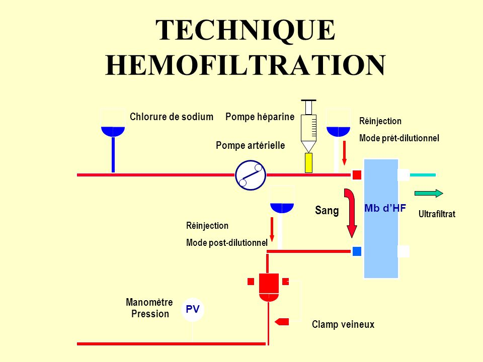 TECHNIQUE HEMOFILTRATION