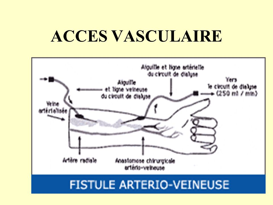 ACCES VASCULAIRE