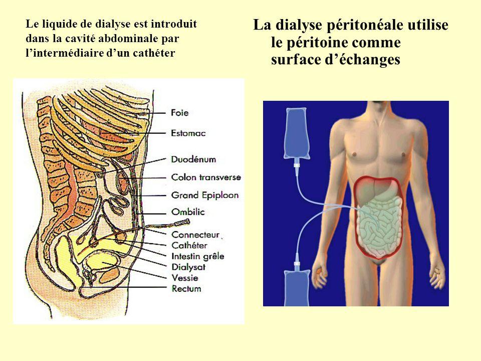 La dialyse péritonéale utilise le péritoine comme surface d'échanges
