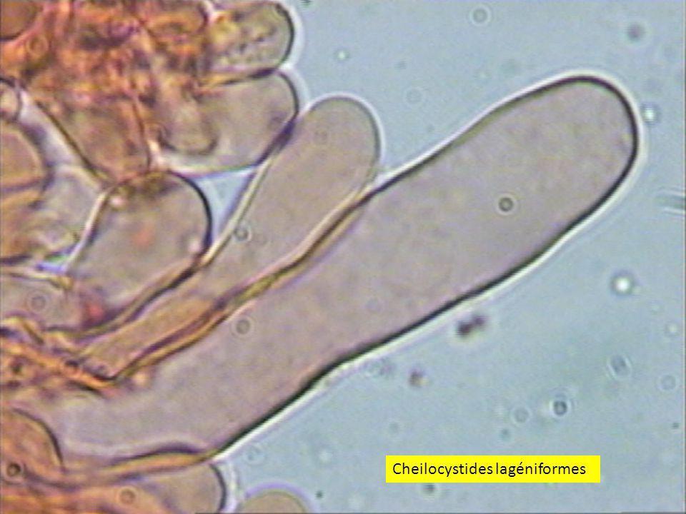 2121 Cheilocystides lagéniformes
