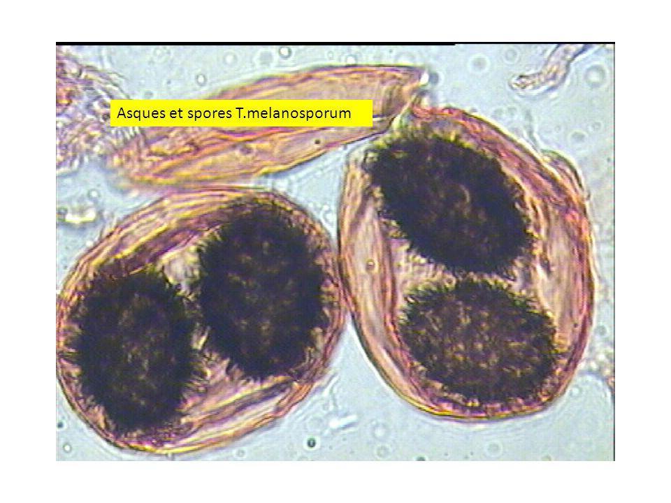 2424 Asques et spores T.melanosporum