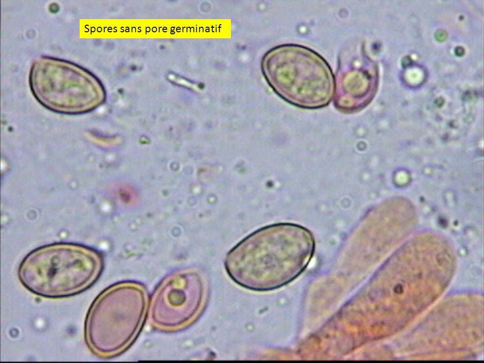 3535 Spores sans pore germinatif