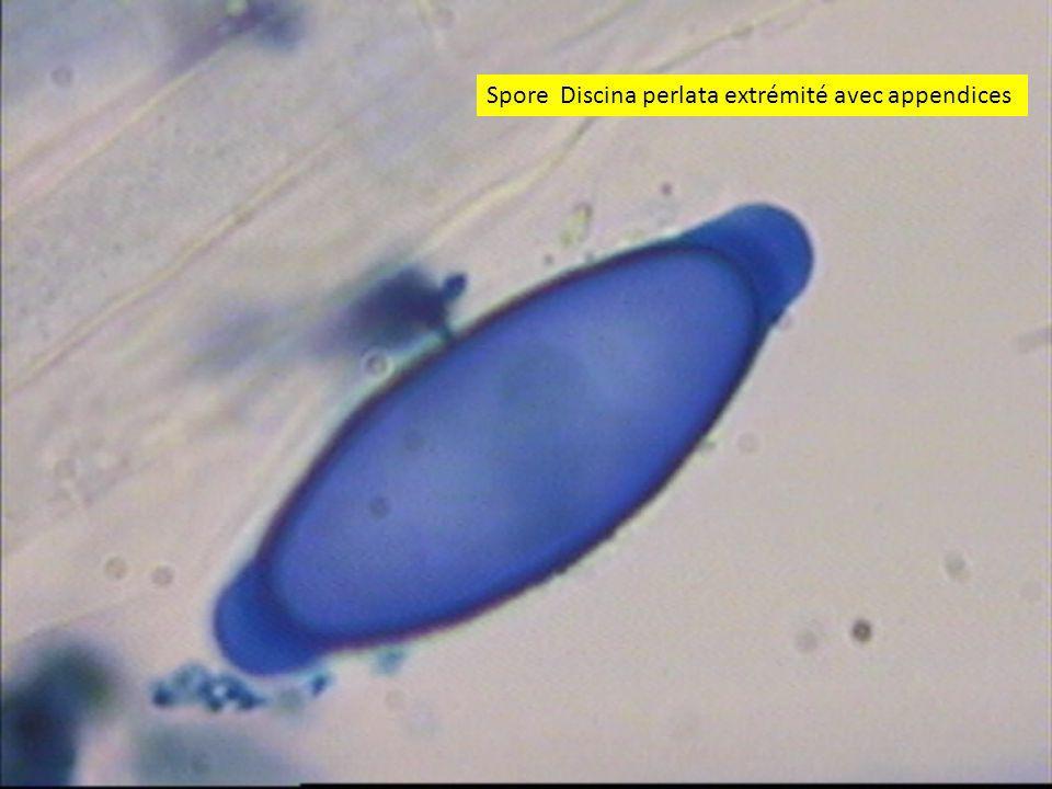 3636 Spore Discina perlata extrémité avec appendices
