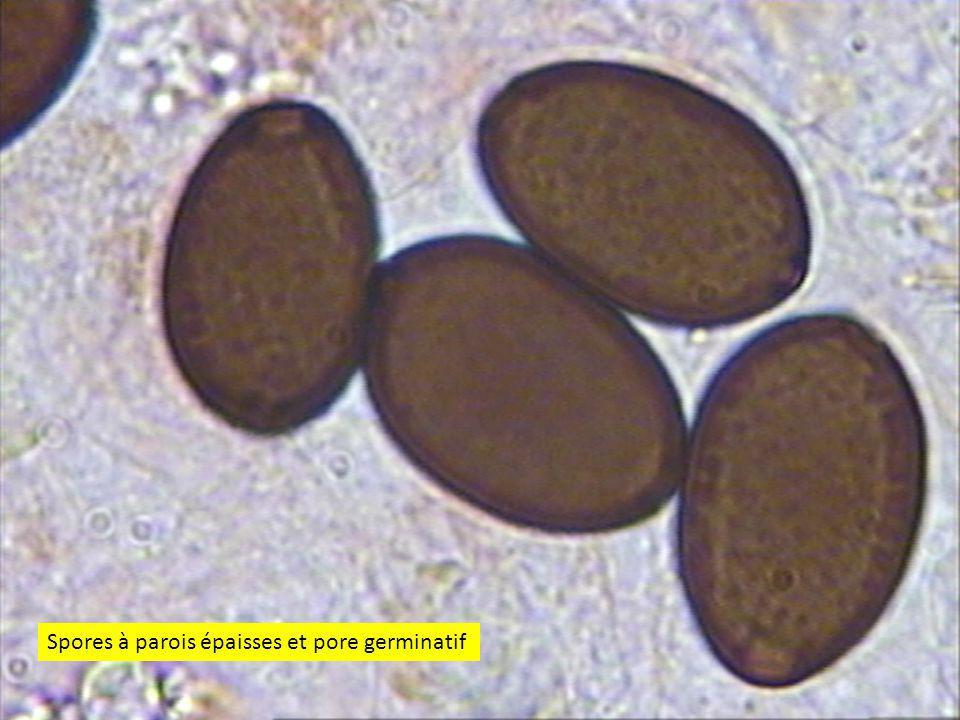 4444 Spores à parois épaisses et pore germinatif