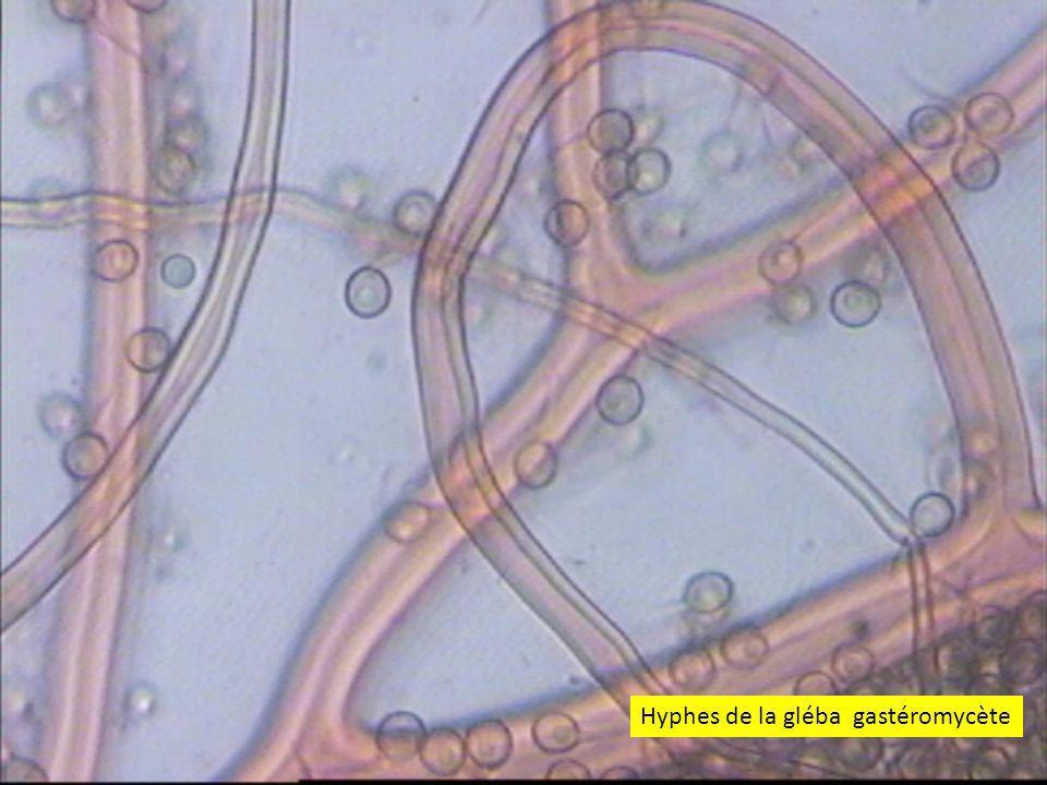 4747 Hyphes de la gléba gastéromycète