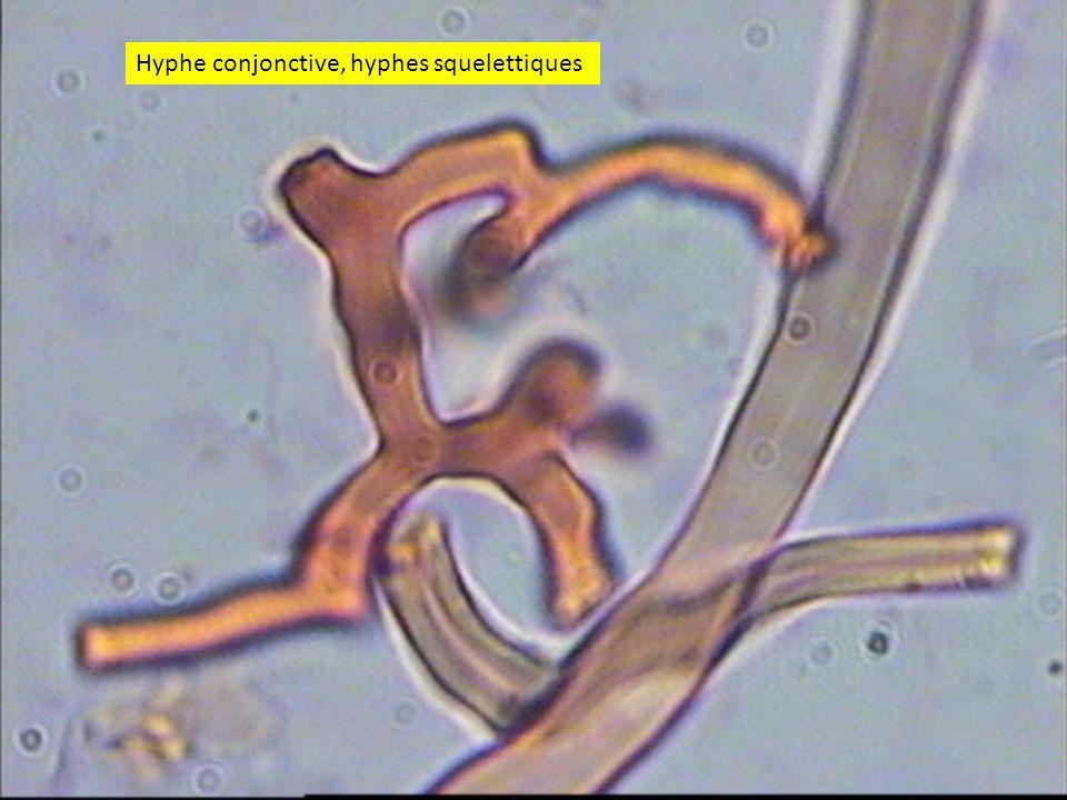 5151 Hyphe conjonctive, hyphes squelettiques