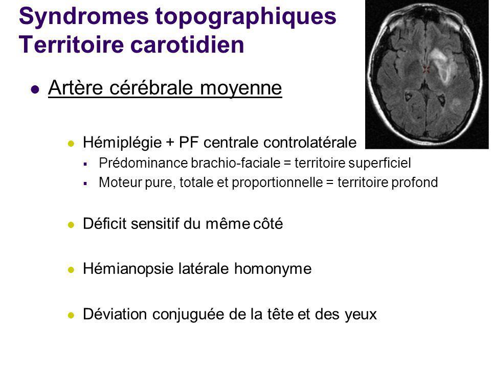 Syndromes topographiques Territoire carotidien