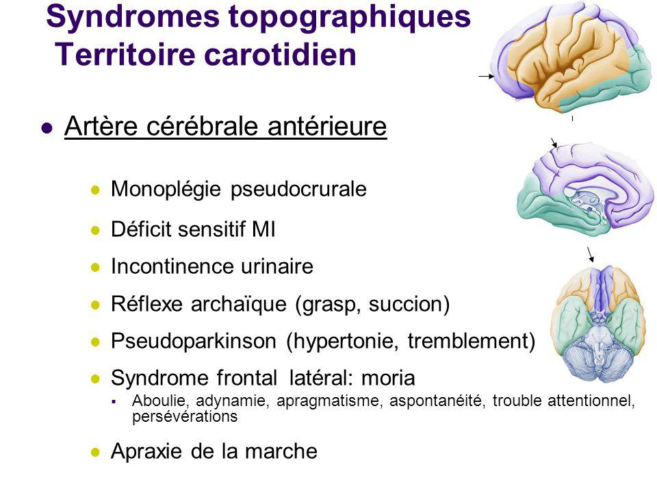 Syndromes topographiques Territoire carotidien