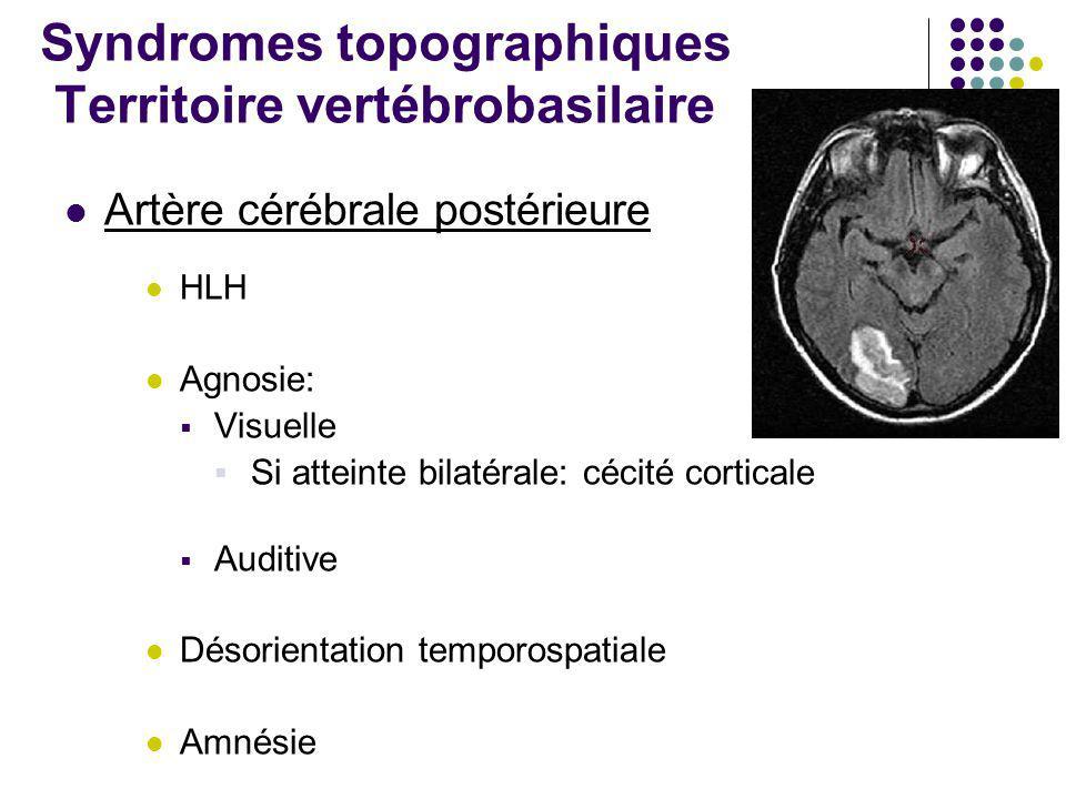 Syndromes topographiques Territoire vertébrobasilaire