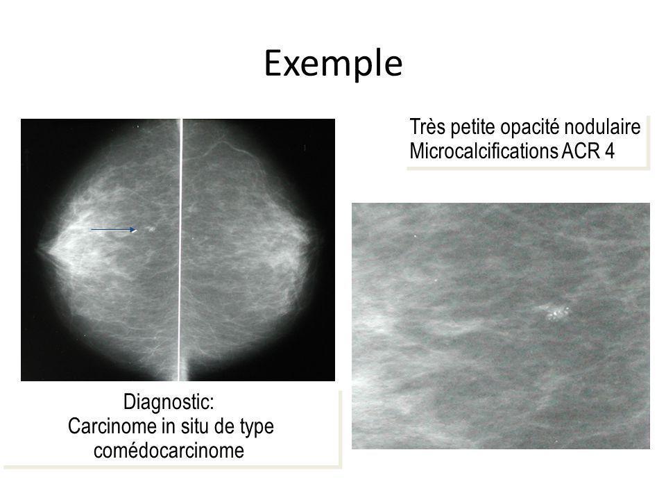 Carcinome in situ de type comédocarcinome