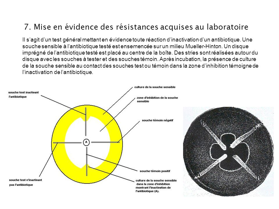 7. Mise en évidence des résistances acquises au laboratoire