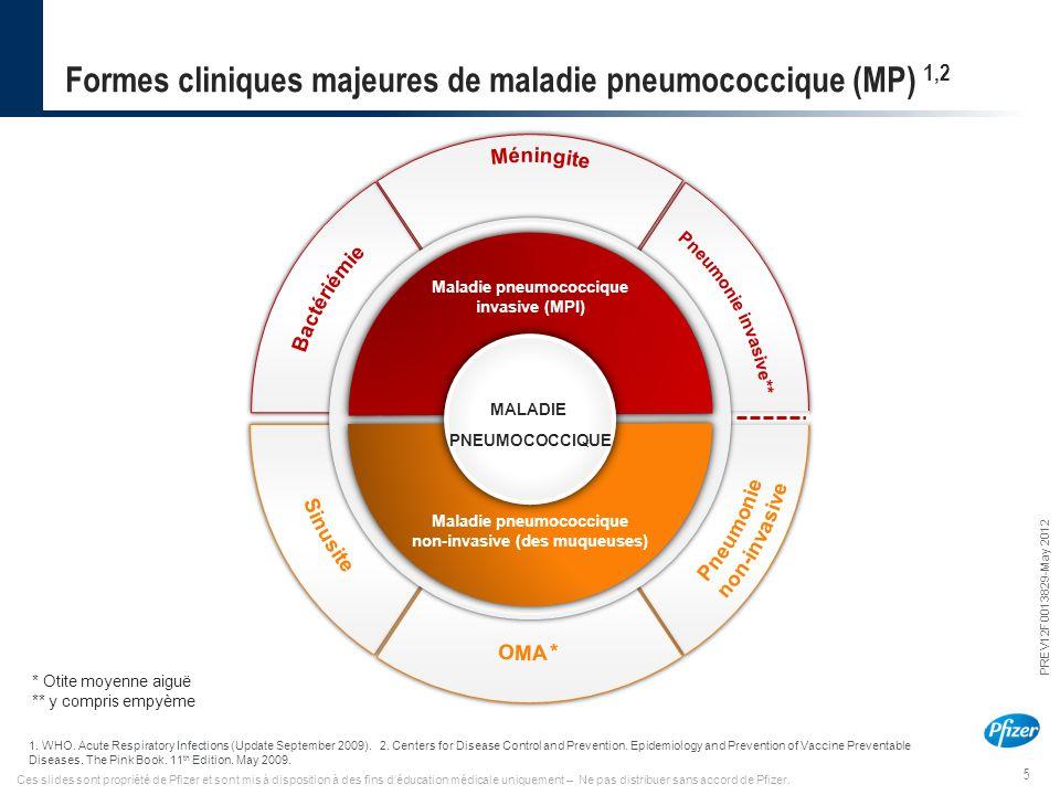 Formes cliniques majeures de maladie pneumococcique (MP) 1,2