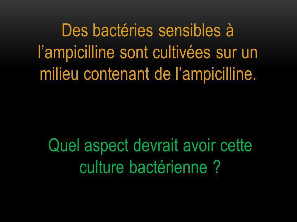 Quel aspect devrait avoir cette culture bactérienne