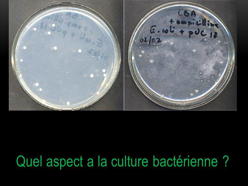 Quel aspect a la culture bactérienne