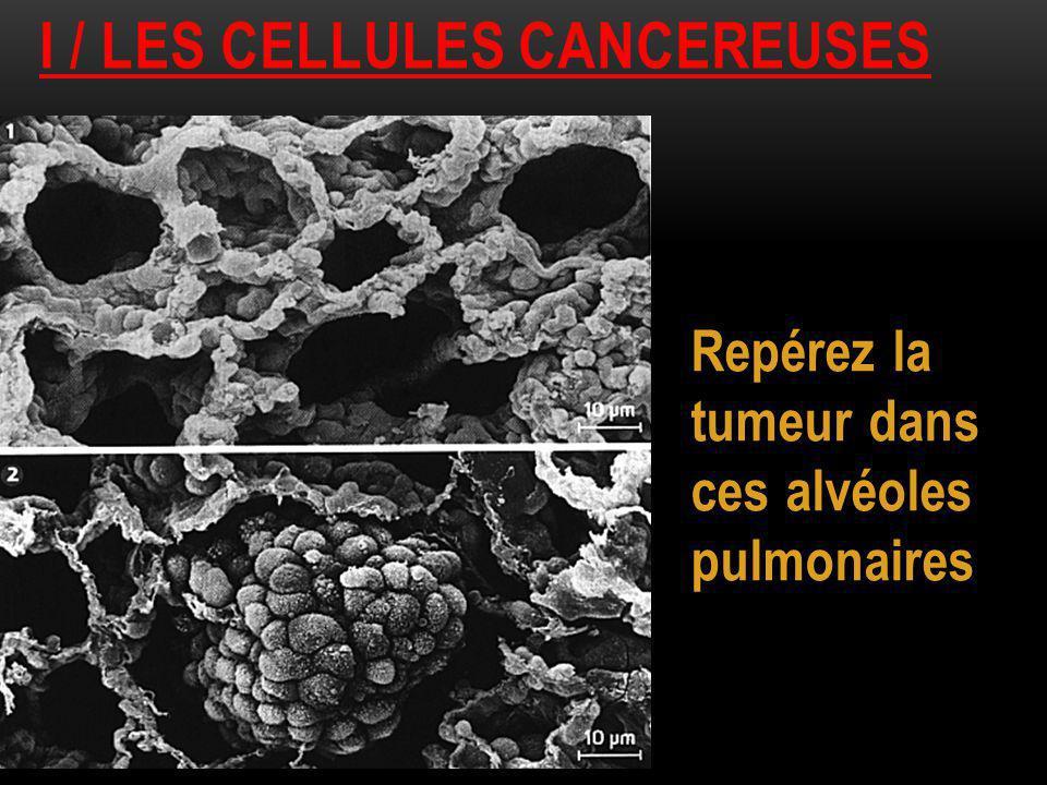 I / les cellules cancereuses