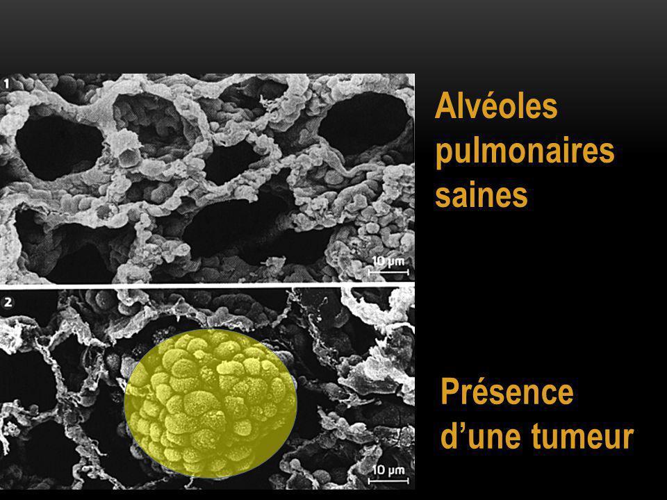 Alvéoles pulmonaires saines