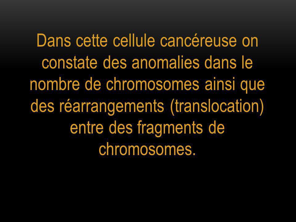 Dans cette cellule cancéreuse on constate des anomalies dans le nombre de chromosomes ainsi que des réarrangements (translocation) entre des fragments de chromosomes.