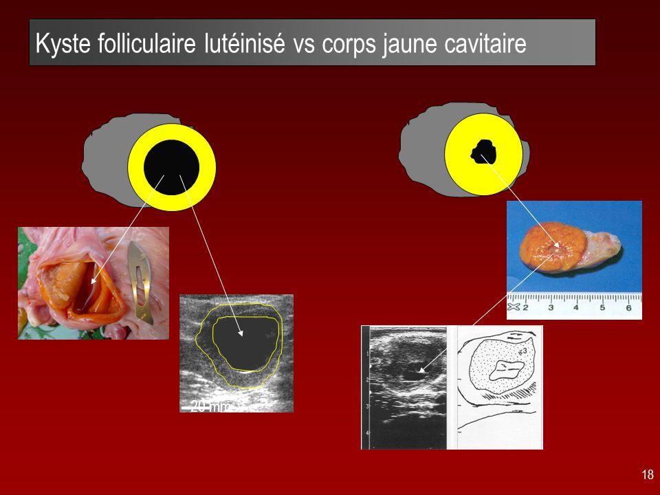 Kyste folliculaire lutéinisé vs corps jaune cavitaire