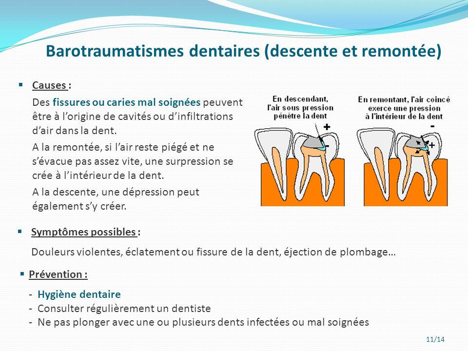 Barotraumatismes dentaires (descente et remontée)