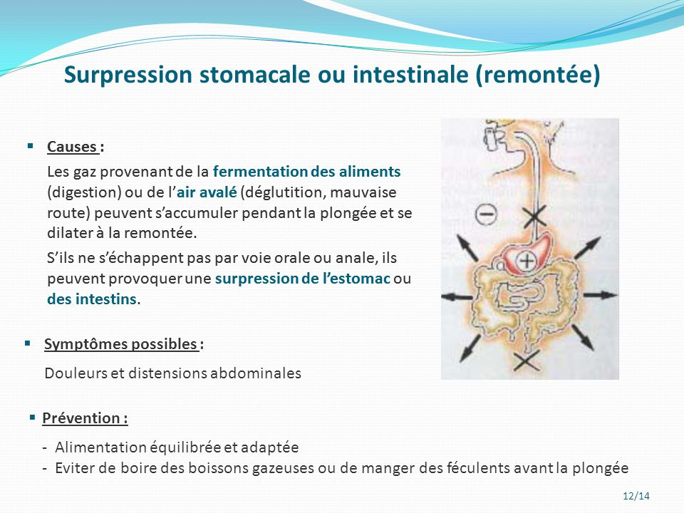 Surpression stomacale ou intestinale (remontée)