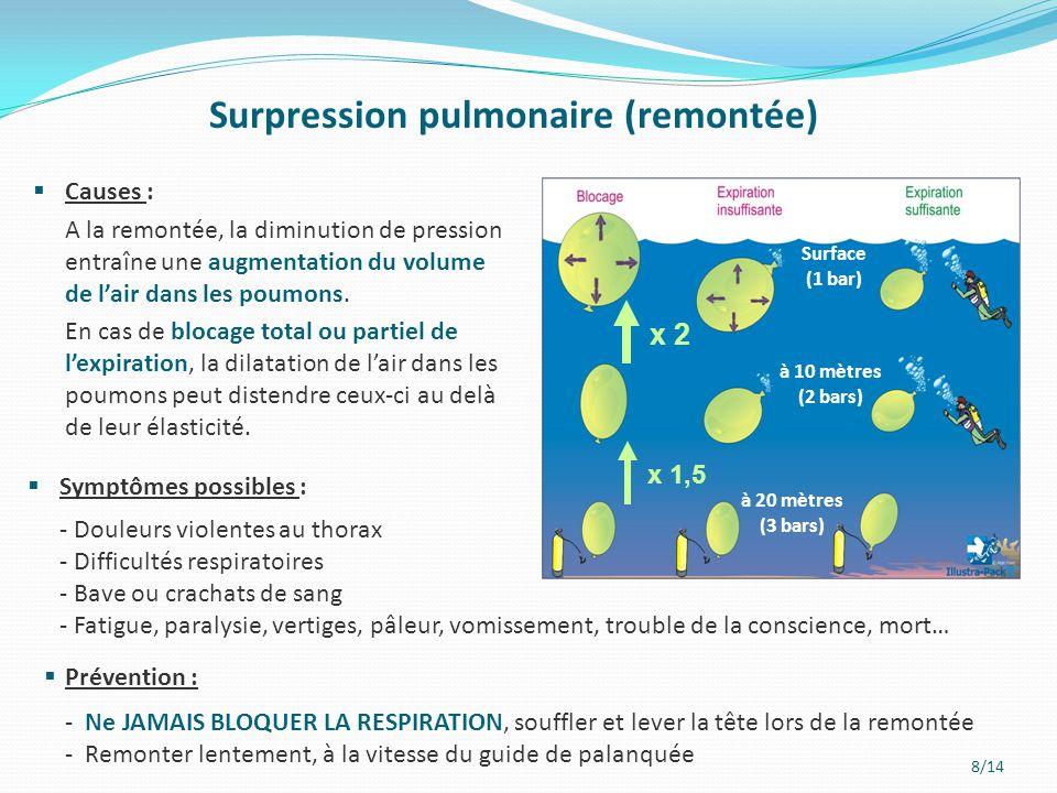 Surpression pulmonaire (remontée)