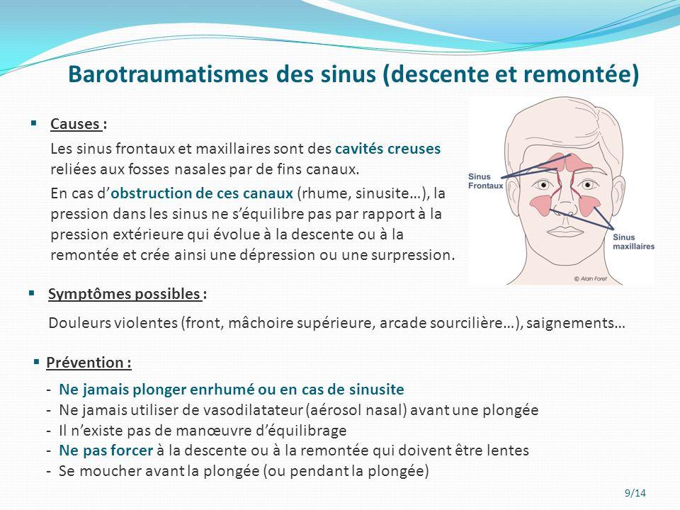 Barotraumatismes des sinus (descente et remontée)