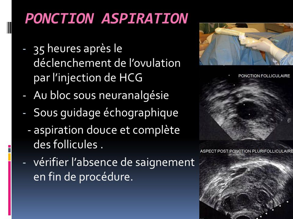 PONCTION ASPIRATION 35 heures après le déclenchement de l'ovulation par l'injection de HCG. - Au bloc sous neuranalgésie.