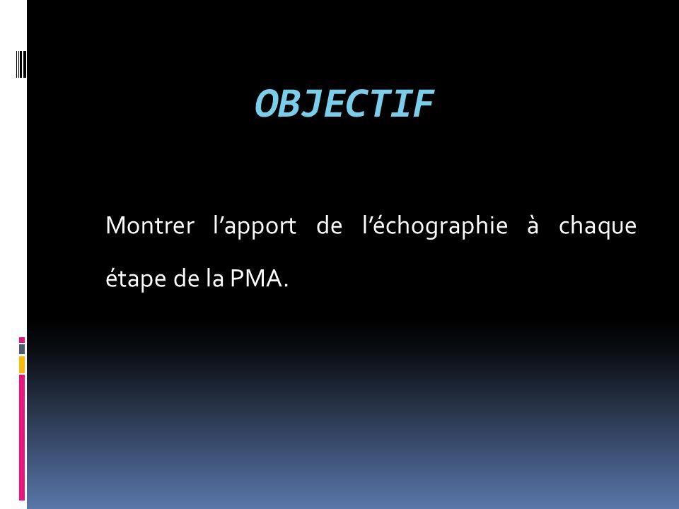 OBJECTIF Montrer l'apport de l'échographie à chaque étape de la PMA.