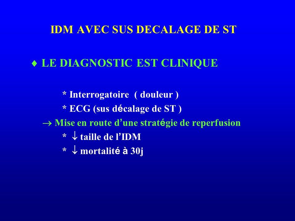 IDM AVEC SUS DECALAGE DE ST