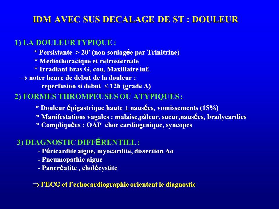IDM AVEC SUS DECALAGE DE ST : DOULEUR