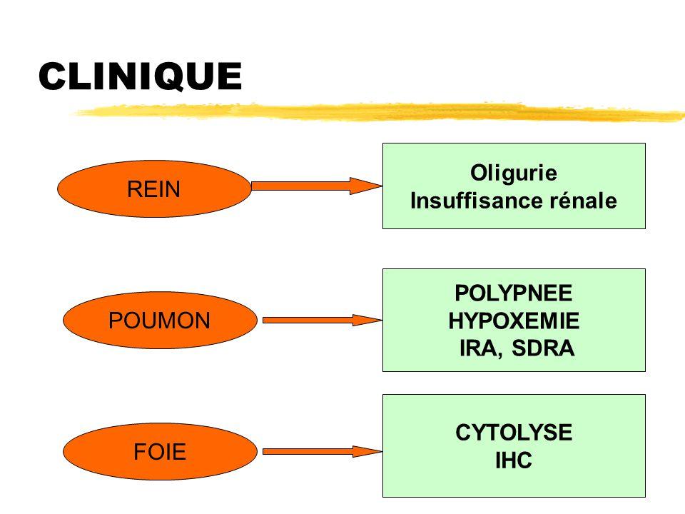 CLINIQUE Oligurie Insuffisance rénale REIN POLYPNEE HYPOXEMIE POUMON