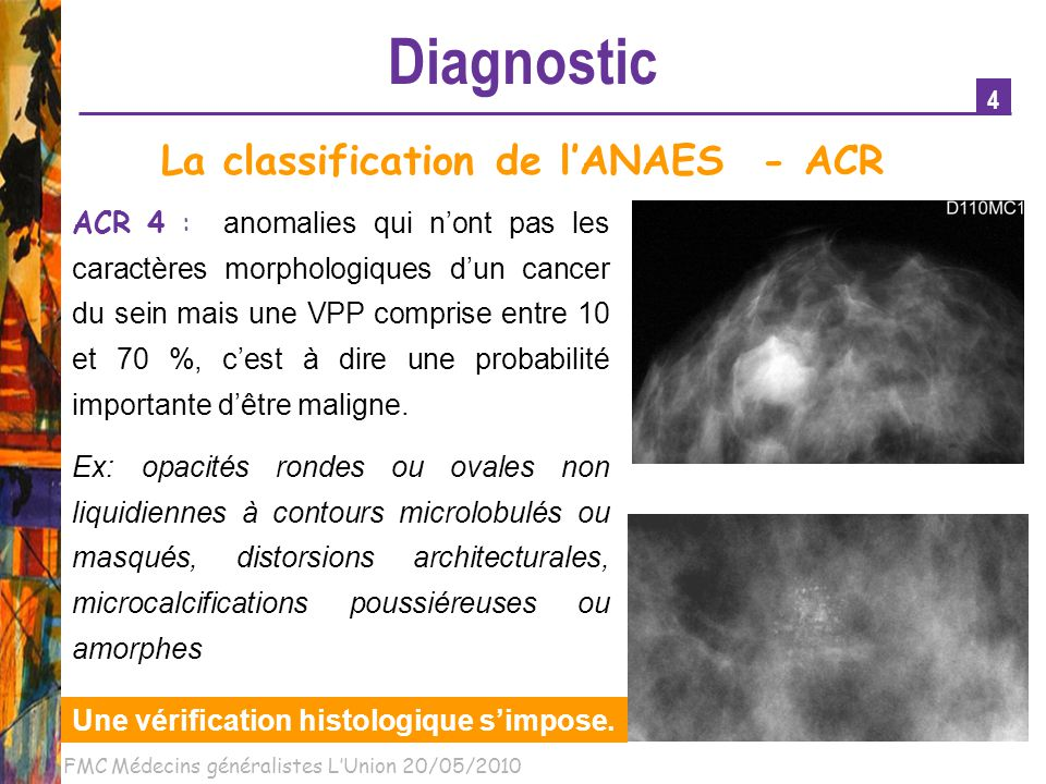 La classification de l'ANAES - ACR
