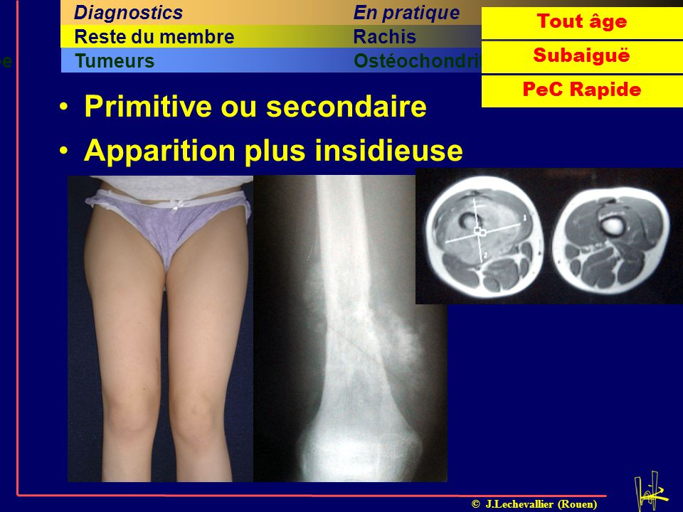 Primitive ou secondaire Apparition plus insidieuse