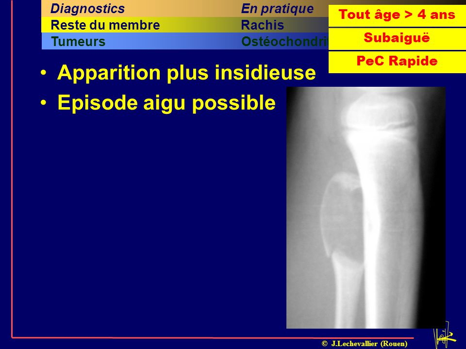 Apparition plus insidieuse Episode aigu possible