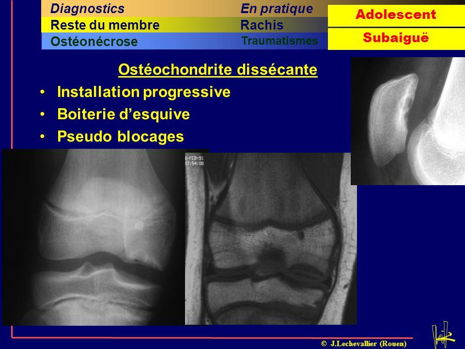 Ostéochondrite dissécante
